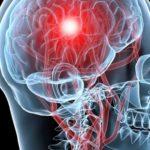 Какие способы предотвращения инсульта самые эффективные