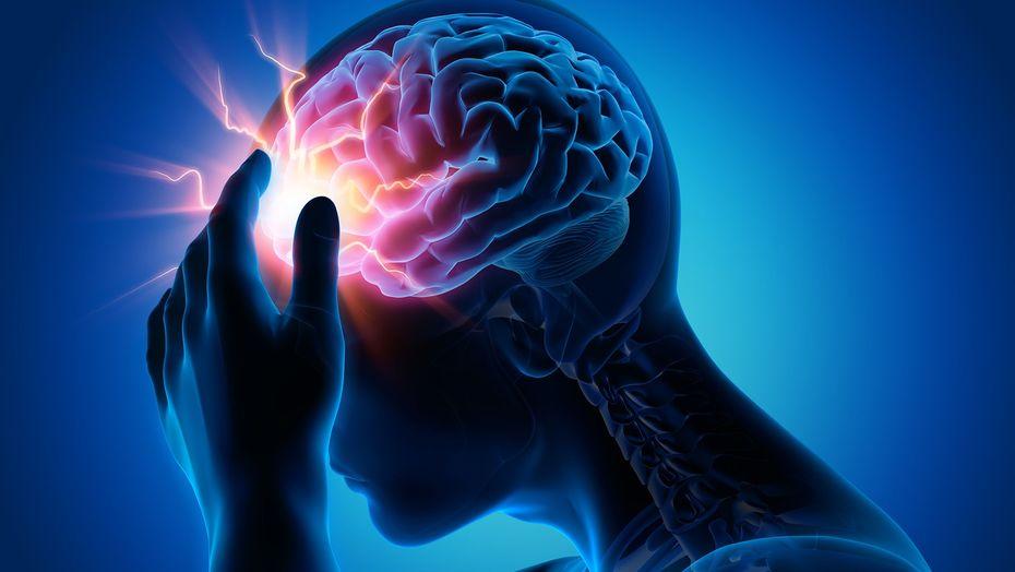 Медики назвали 4 предвещающие инсульт симптома