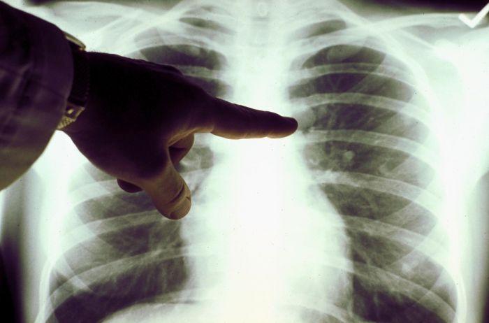 Врачи предупреждают: пневмония при коронавирусе может не иметь симптомов, пока не будет поздно