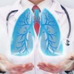 Обратите внимание на пальцы: названы самые нетипичные симптомы рака легких