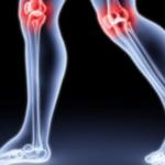 Почему щелкают суставы и как с этим бороться