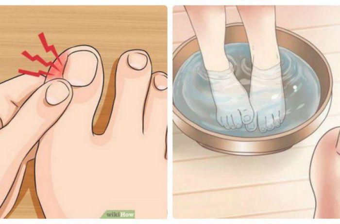 Как избавиться от вросшего ногтя: пошаговая инструкция