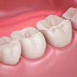 Какие продукты укрепляют десна и зубы