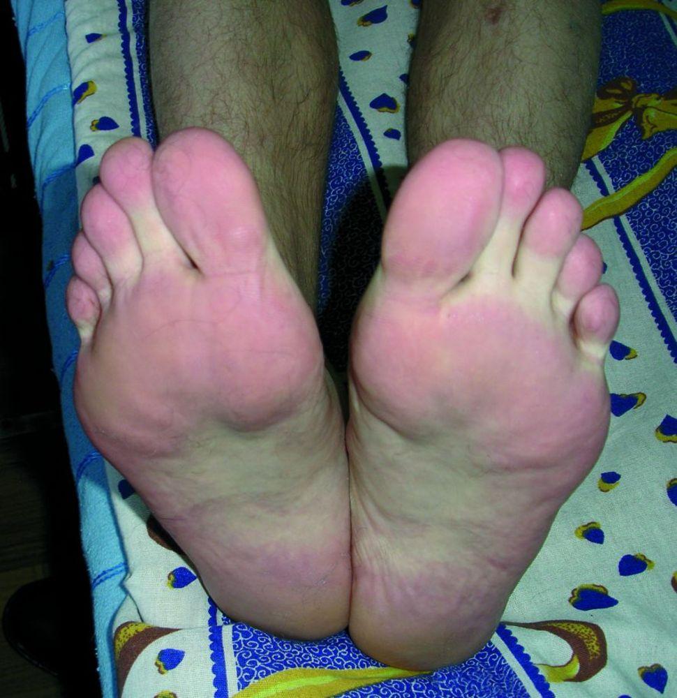 Болезненная эритема конечностей (эритромелалгия): причины и лечение
