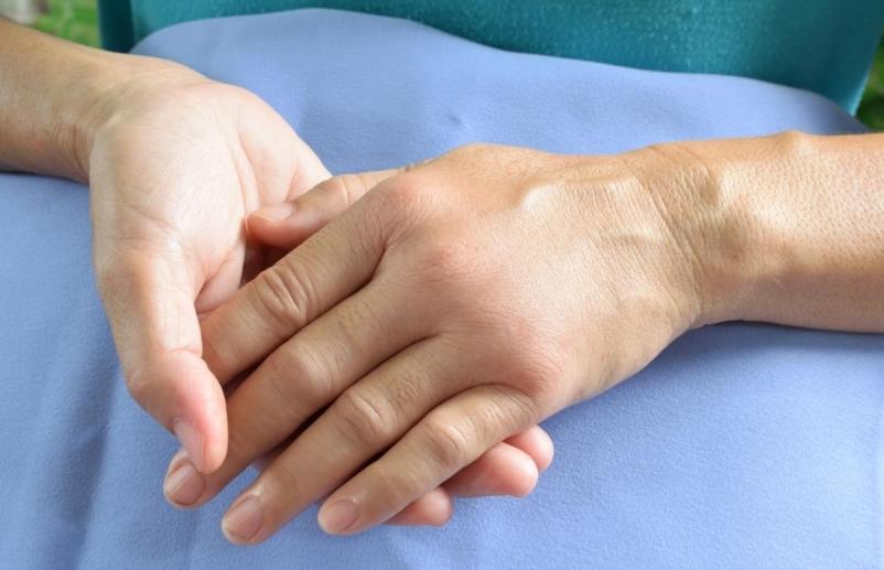 Лимфатический отёк: причины, симптомы, диагностика и лечение