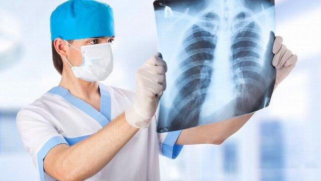 Признаки уже через 5-7 часов: врач о молниеносном развитии пневмонии при COVID-19