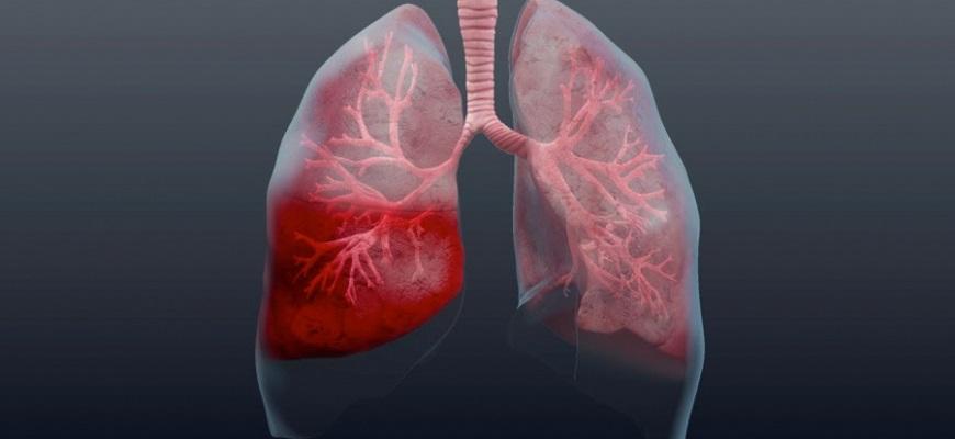 Как выявить пневмонию на ранней стадии и быстро её вылечить