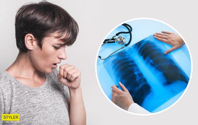 Проверенный способ отличить пневмонию от простуды