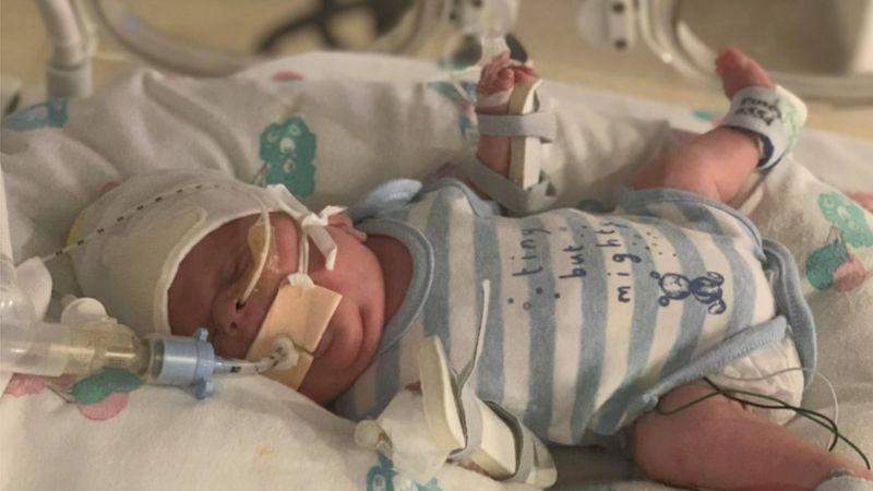 Весил менее 800 грамм: новорожденный чудом выжил после коронавируса