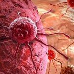 Медики празднуют победу: «убита» распространенная мутация рака