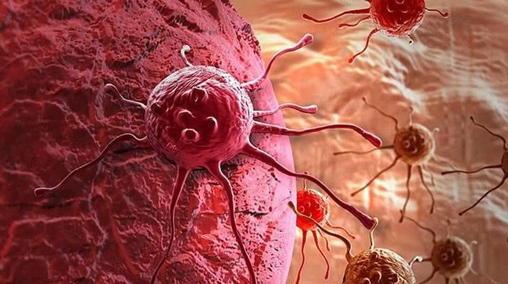 """Медики празднуют победу: """"убита"""" распространенная мутация рака"""