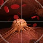 Симптомы, которые ошибочно считаются раковыми