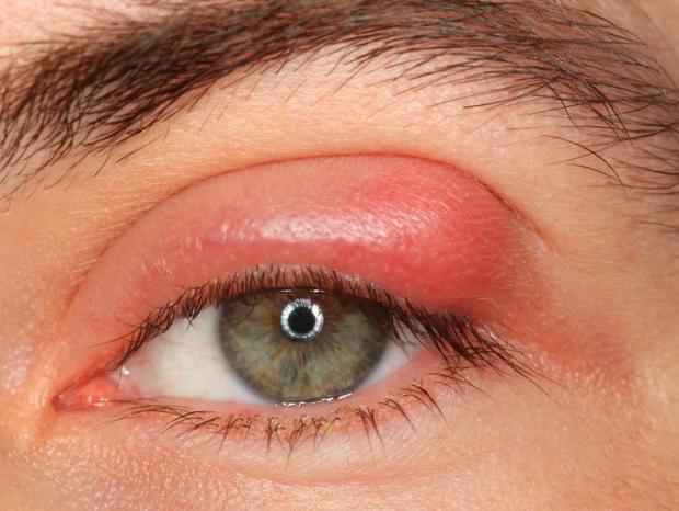 Ячмень на глазу: симптомы и лечение