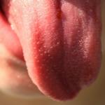 Рак языка: названы симптомы, которые нельзя игнорировать