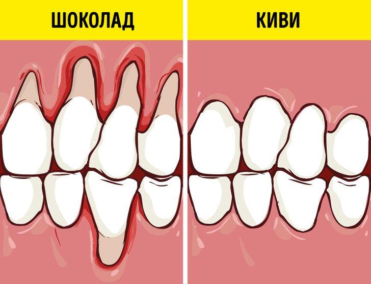 Врачи назвали продукты, которые сохранят здоровыми десна и зубы
