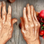Ученные выяснили, что популярное рождественское угощение помогает уменьшить боль при артрите