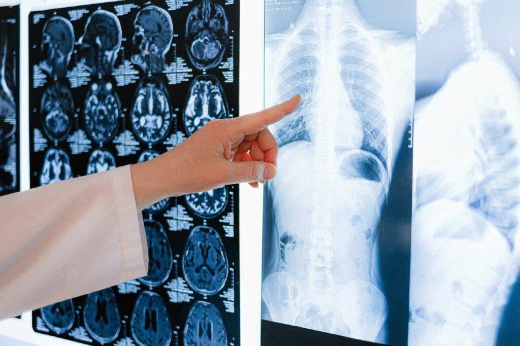 Что вызывает Рак Легких?