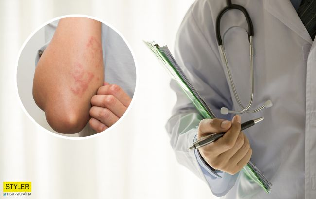 Красная волчанка: причины появления и первые симптомы заболевания