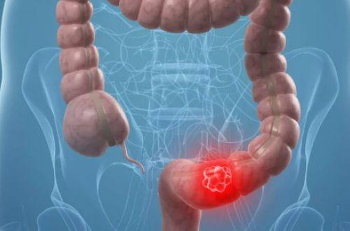 Онкологи назвали необычный признак рака кишечника