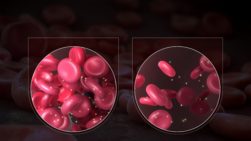 Анемия: названы симптомы и методы предотвращения