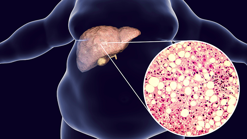 Жировой гепатоз печени: симптомы и методы лечения