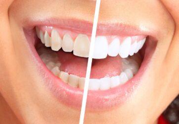 Где провести отбеливание зубов в Киеве?