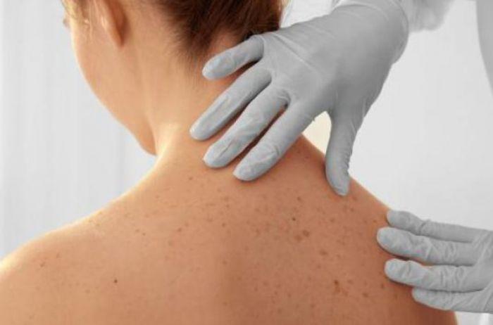 Названы незаметные признаки рака кожи