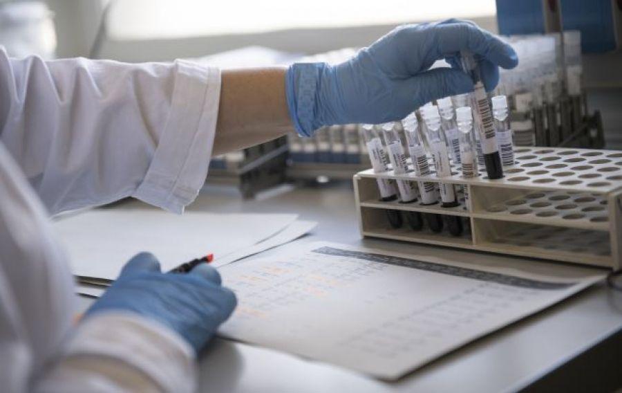 Стоит ли делать тест на антитела после COVID-вакцинации